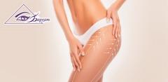 Программы похудения в центре косметологии и коррекции фигуры «Бархат»