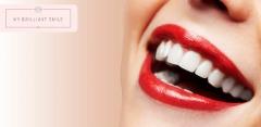 Отбеливание зубов в студии My Brilliant Smile: от 2 до 16 тонов