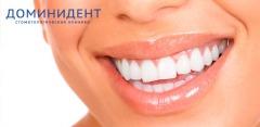 Лечение кариеса, установка брекетов, реставрация зубов и другое в «ДоминиДент»