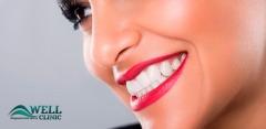 Чистка зубов, отбеливание Air Flow, лечение кариеса в центре Well Clinic