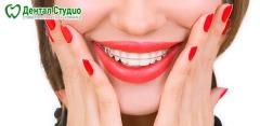 Установка брекетов в стоматологической клинике «Дентал Студио»