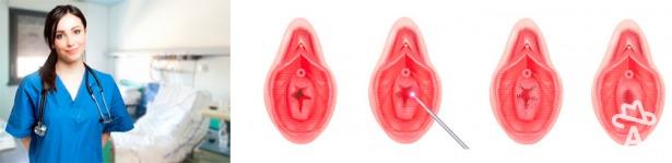 фото увеличенные половые губы
